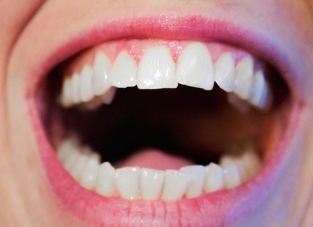 Schöne Zähne wünscht sich jeder!