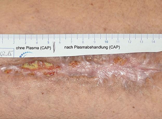 infizierte Hautwunde (mit und ohne Plasmabehandlung)