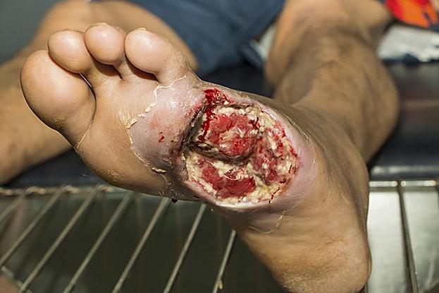 Diabetischer Fuß in seiner schlimmsten Form
