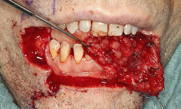 Lippenkrebs: Rekonstruktion des Unterlippenrots