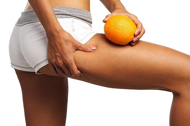 Sport ist die wichtigste Therapie bei Cellulite. Er steigert die Durchblutung und hilft das Fett abbauen.