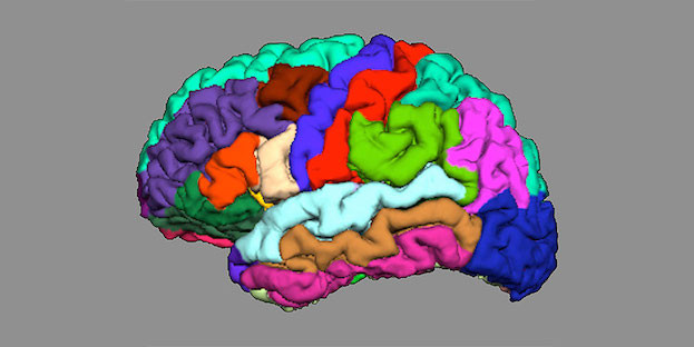 Die Anatomie unseres Gehirns kann Hinweise auf die Entstehung von Psychosen liefern