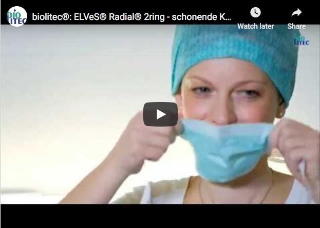 Behandlung einer Krampfader mit der ELVeS® Radial® 2ring-Faser von biolitec®
