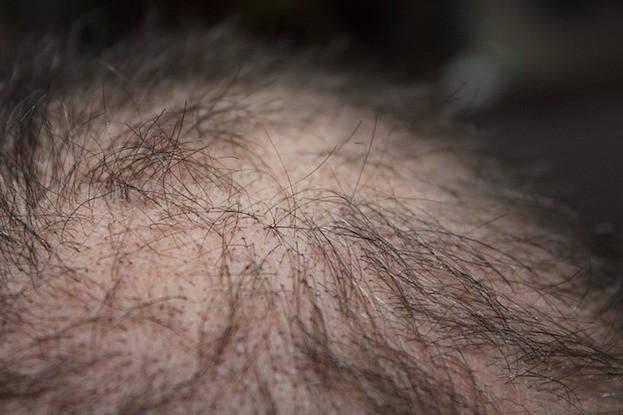 Led Chip Lässt Haare Wieder Wachsen Gesundheitcom