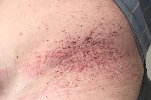 Hautveränderungen bei Morbus Fabry werden als Angiokeratome bezeichnet.