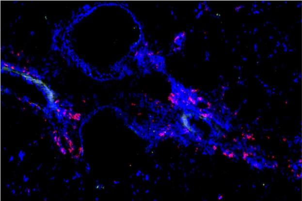 T-Speicherzellen(rot), die auf Allergene reagieren, die zu einem Asthmaanfall führen. Das Blau zeigt die Lungenstruktur