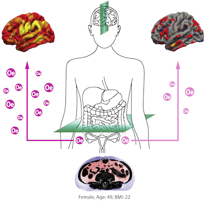 Erhöhtes Organfett (Scan unten) beschleunigt die Alterung von Gehirnnetzwerken. Östradiol (Oe) scheint das Gehirn von Frauen während der Lebensmitte vor strukturellen Schäden (rechts oben).