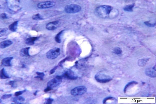 Der Parasit Entamoeba gingivalis dringt ins Zahnfleischgewebe ein und ernährt sich dort von Wirtszellen.