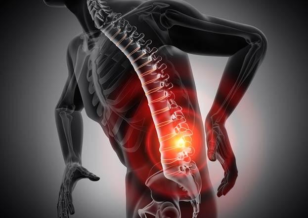 Rückenschmerzen im Alter können früh vermieden werden