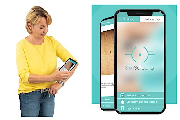 Hautkrebsvorsorge leicht gemacht mit der App SkinScreener