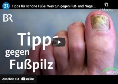 Fußpilz (Tinea Pedis) - BR