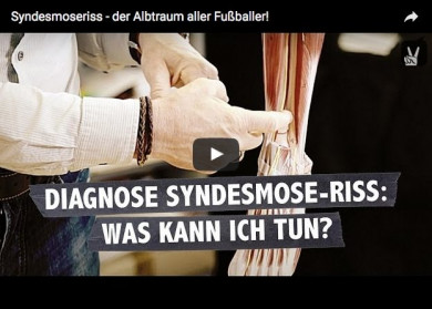 Syndesmose-Riss