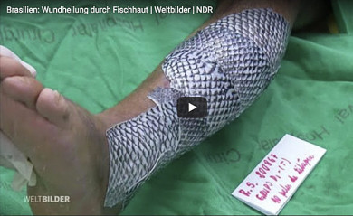 Wundheilung durch Fischhaut