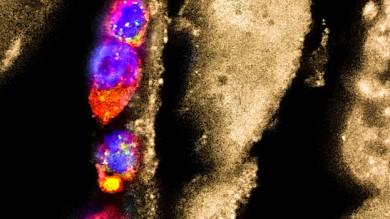 Entzündungshemmende Makrophagen (bunt), die auf Parasiten-Larven