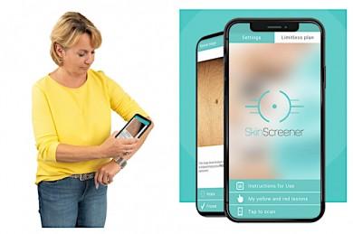 Hautkrebsvorsorge leicht gemacht mit der App SkinScreener - ©medaia GmbH