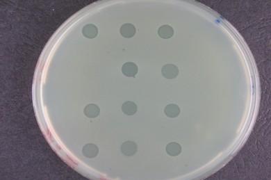 Bakterienrasen mit Löchern, die durch Phagen verursacht werden - ©Leibniz-Institut DSMZ