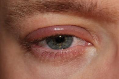 Blepharitis - ©Wikipedia_Gemeinfrei_clubtable - Selbst fotografiert