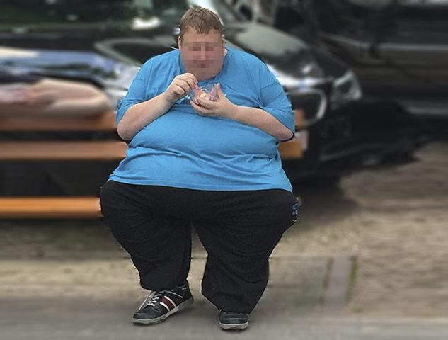 Adipositas mit einem BMI über >40