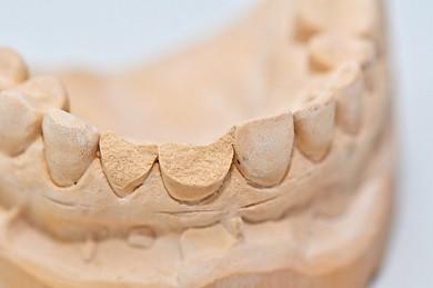 Bruxismus: Zähneknirschen - ©Brigitte Meckle