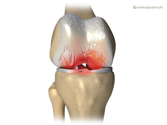 Entzündete Knie-Osteoarthritis
