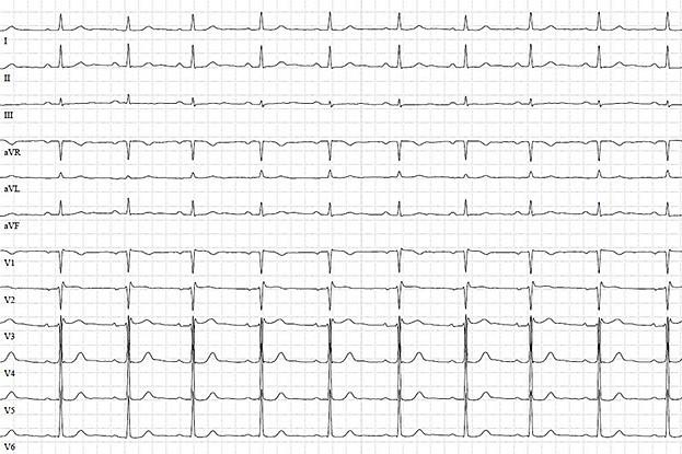 Elektrokardiogramm bei einem akuten Koronarsyndrom ohne ST-Strecken-Hebung