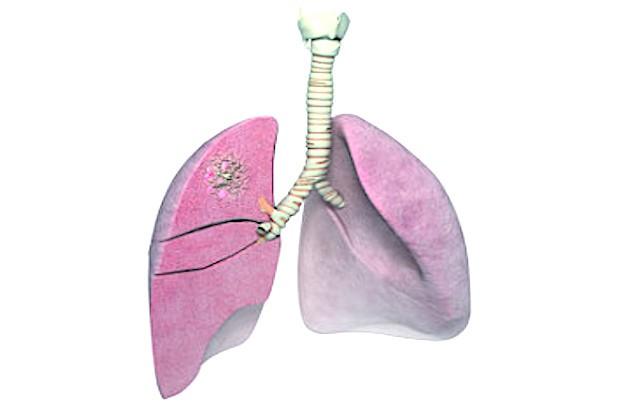 Sichtbares Lungenkarzinom