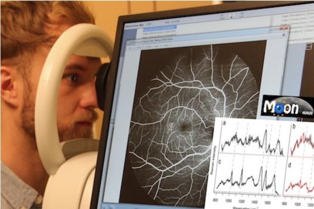 Das Forscherteam baut ein Gerät, an dem Patientinnen und Patienten ihr Auge berührungsfrei abrastern lassen können und wenige Minuten später eine Diagnose erhalten.