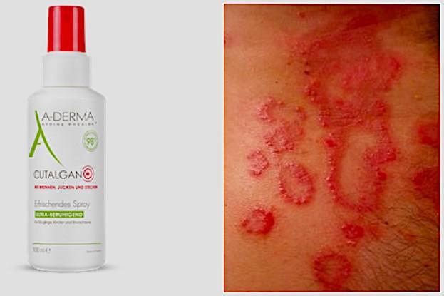CUTALGAN® Hautspray hilft gegen Hautrötungen und -reizungen