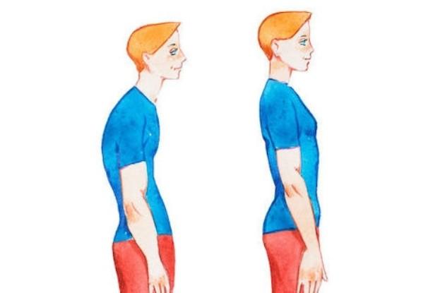 Rundrücken (Hyperkyphose) kann wegtrainiert werden