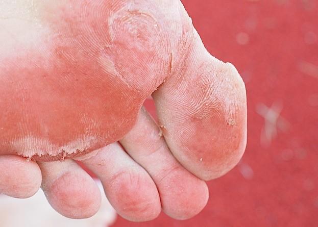 Fußpilz hat leider nichts mit schmackhaften Waldpilzen zu tun
