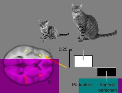 Die Betrachtung von Jungtieren im Vergleich zu ausgewachsenen Tieren löst bei pädophilen Männern verstärkte Aktivität in verschiedenen Hirnarealen aus (gelbe Flächen).