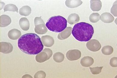 Akute Lymphoblastische Leukämie. Ausstrich des peripheren Blutes. Pappenheim-Färbung, Vergrößerung x100