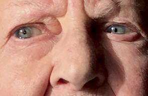 Augen mit AMD