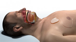 Offene Atemwege mit der Inspire Therapie