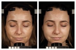 Links: Ohne Pigmentfilter, rechts: nach 12 Wochen mit Pigmentfilter-Behandlung